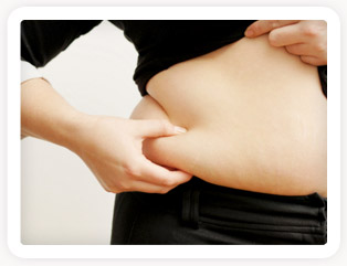 Woman pinching fat. Stem cell fat transfer.